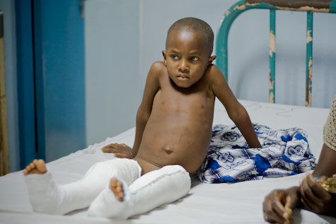 A boy recovers after corrective surgery for bow-leggedness