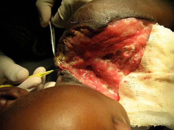 Buruli Ulcer - The Hauns in Africa
